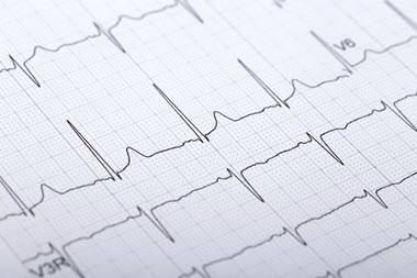 ECG - Being prepared for CT Cardiac scanning
