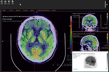 MI Neurology Basic Reading VB50