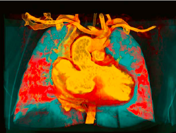 Spectral Imaging with Dual Energy CT Whitepaper